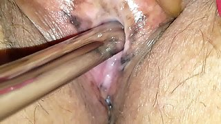 Peehole insertion